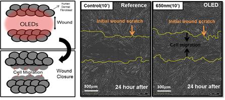 그림 7. 웨어러블 OLED 패치의 상처 치유 효과웨어러블 OLED 패치를 이용한 광선 치료를 사람의 섬유모세포에 적용하였을 경우 최대 46% 향상된 세포 이동효과를 보여 상처가 15시간 이상 빠르고 효과적으로 채워졌다. 이러한 결과는 OLED 조사 이후 24시간 뒤 결과를 대조군과 비교하였을 때 세포가 이동하여 상처가 많이 채워져 있다.